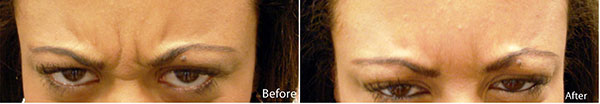 Botox Before and After | Derma Medical Spa