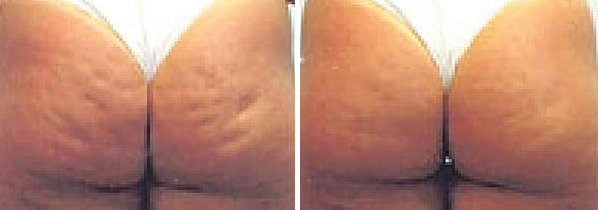 Carbossi Before & After Treatment