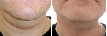 Carbossi for Sagging Chin