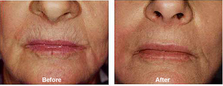 Dermapen Micro-Needling Skin Treatment