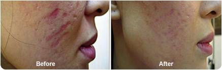 Dermapen for scars before & after