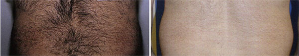 Laser Hair Removal Highland, IN