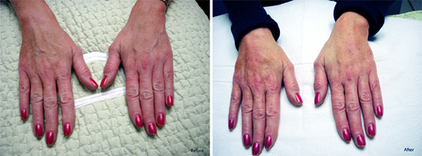 Hand Rejuvenation Treatment with Radiesse