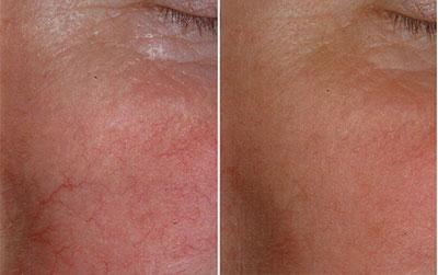 Laser Treatment for broken capillaries