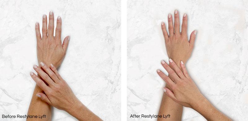 restylane lyft hands