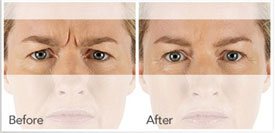 Xeomin Treatment for frown lines