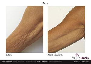 VenusLegacy BA Anti AgingLtd Arms 6Tx 1sm