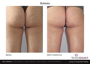 VenusLegacy BA YoungerBodyMediSpa Buttocks 5Tx 1sm