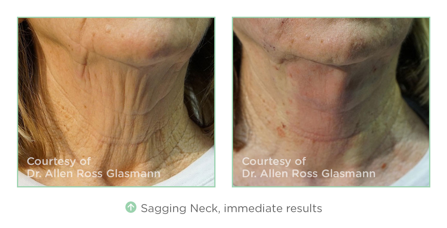 Before & After NovaThreads Sagging Neck