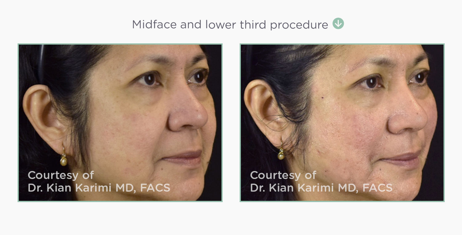 Before & After NovaThreads Mid-Face Lower-Face