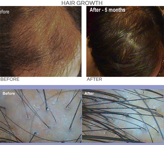 PRP for Hair Growth