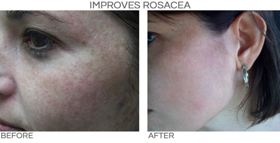 PRP for Rosacea