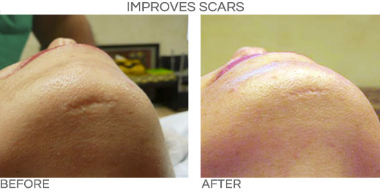 PRP improves post traumatic scars