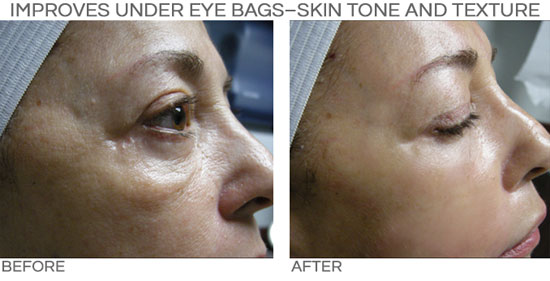 PRP Improves under eye bags, skin tone and texture